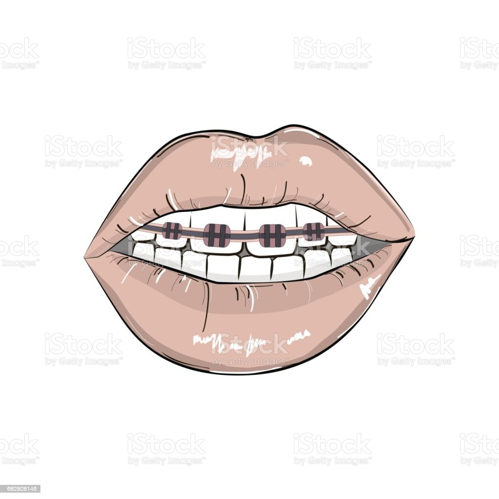 Sexy red lips braces illustration. Erotic playful hot clipart. Modern smile fashion illustration. Pop art open mouth with teeth and dental braces. Dark red lipstick glamour art 80s. Sexual print vector art illustration