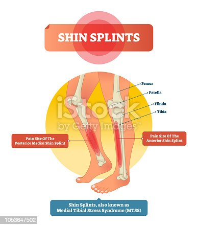 Shin splints vector illustration. Leg muscle sport trauma and bone pain labeled diagram. Isolated femur, patella, fibula, tibia and foot bones with shown injury location.