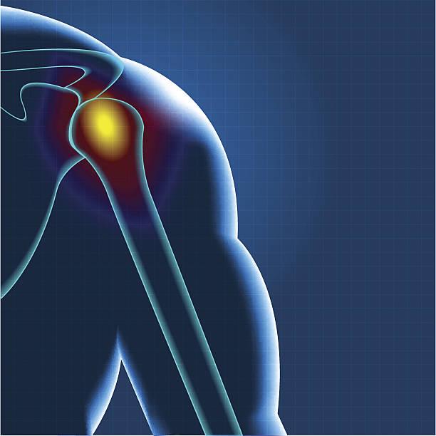 ilustrações de stock, clip art, desenhos animados e ícones de dor no ombro - tronco nu