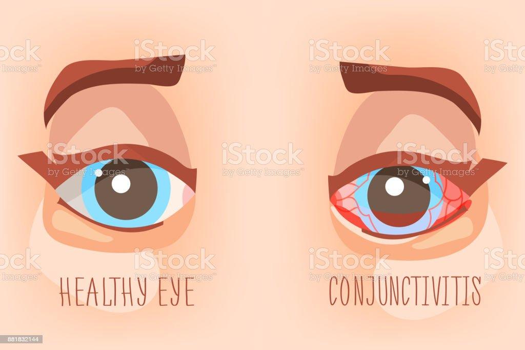 Sick eyes, eye conjunctivitis vector art illustration