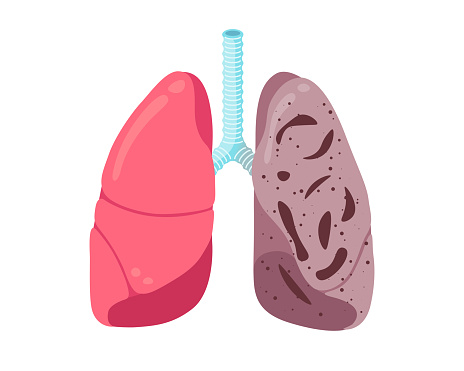 Sick unhealthy lungs tuberculosis infection disease. Human respiratory system internal organ tubercle bacillus infected or pneumonia struck. Medical anatomy damage vector illusrtation