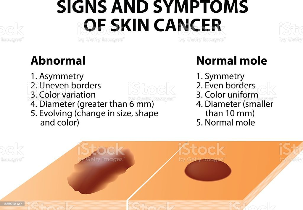 Signs and symptoms of skin cancer vector art illustration