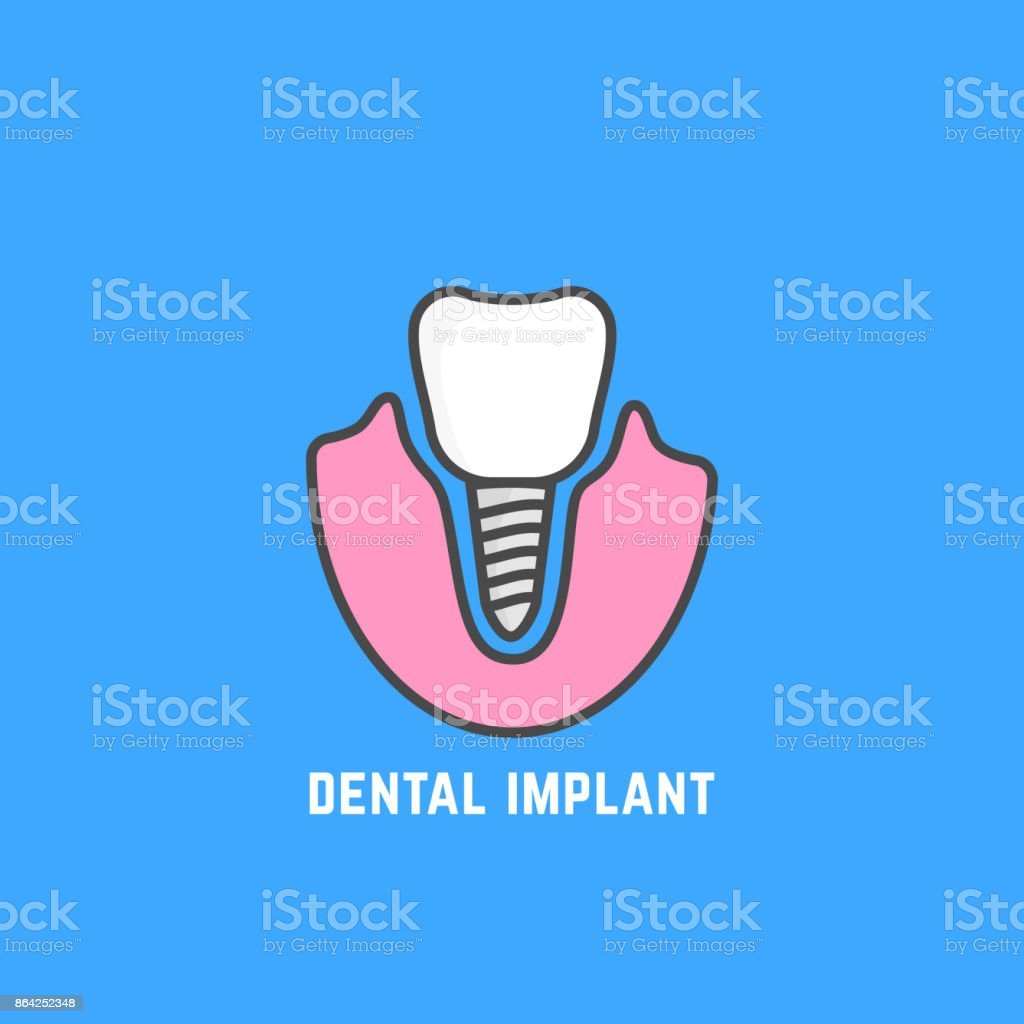 simple icon of white dental implant royalty-free simple icon of white dental implant stock vector art & more images of anatomy