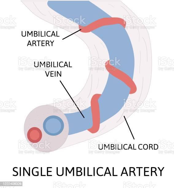 臍帯 単 動脈 一