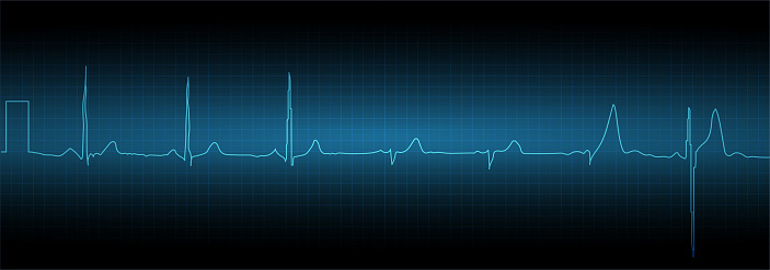 Sinus tachycardia. Heart rate graph. Ekg icon wave. Turquoise color. Stock vector illustration.