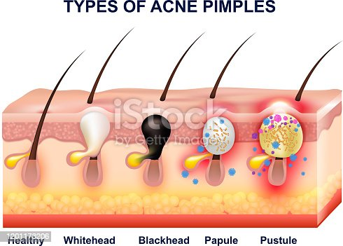 Colored skin acne anatomy composition with types of acne pimples before and after vector illustration