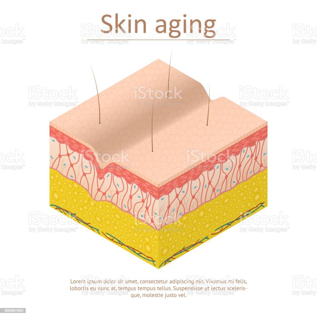 Vue isométrique de la carte affiche de vieillissement de la peau. Vector - Illustration vectorielle