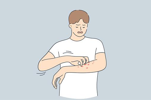 Skin allergy, Dermatitis, eczema concept