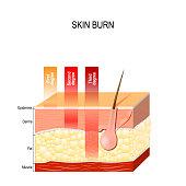 skin burn. Layers of the skin