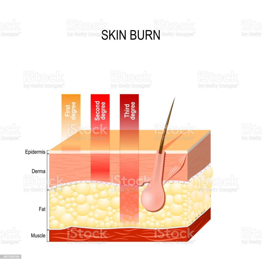 skin burn. Layers of the skin vector art illustration