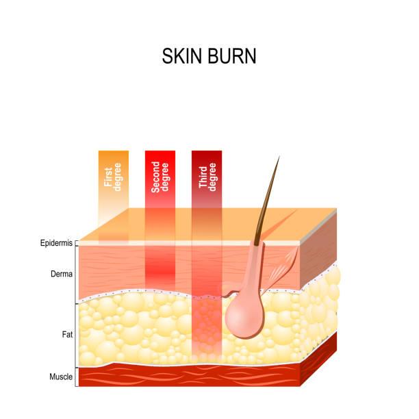 ilustrações, clipart, desenhos animados e ícones de queimadura de pele. camadas da pele - segundo grau