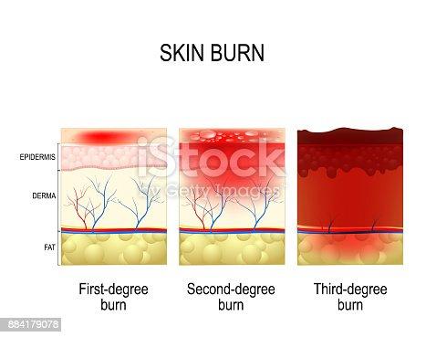 istock skin burn. Three degrees of burns. 884179078