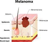 skin cancer. Melanoma