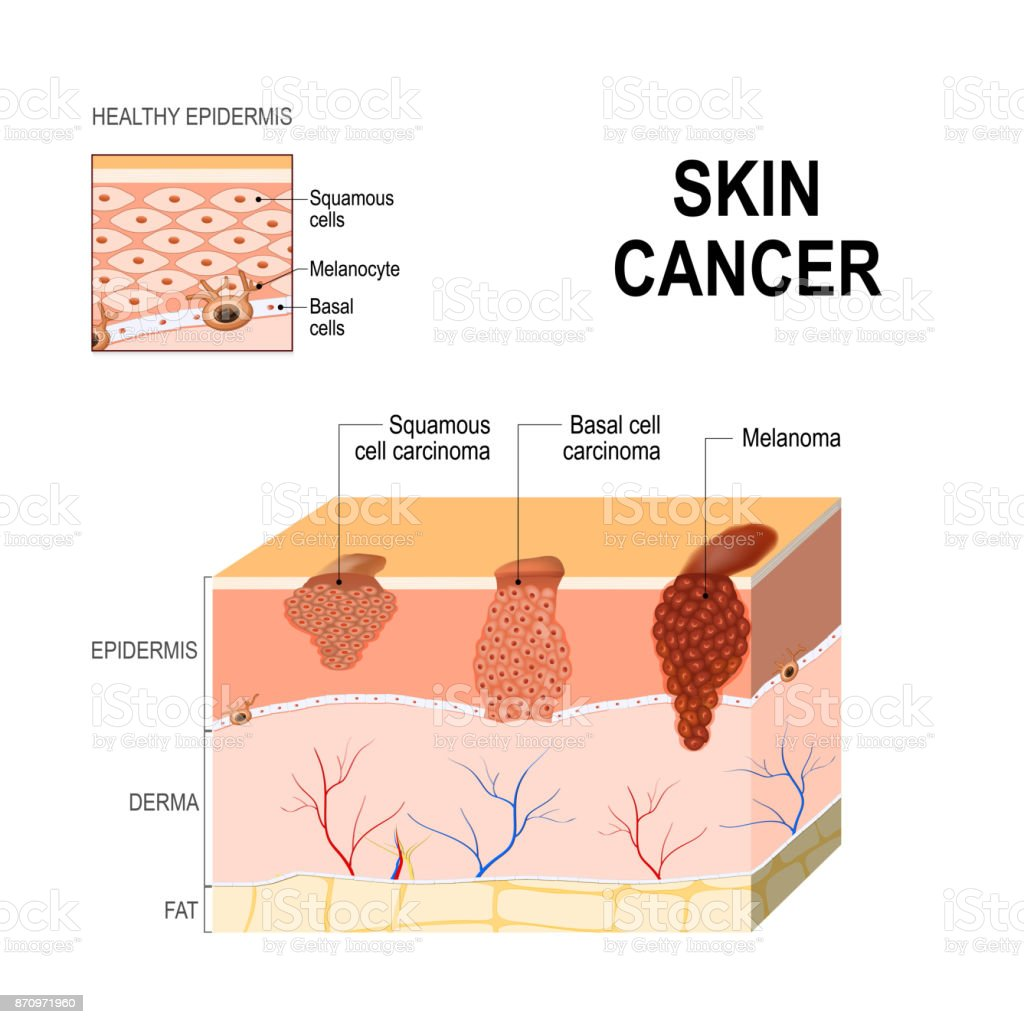 Skin cancer. Squamous cell carcinoma, basal-cell cancer and Melanoma. vector art illustration