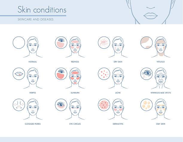 ilustraciones, imágenes clip art, dibujos animados e iconos de stock de skin conditions - dermatología