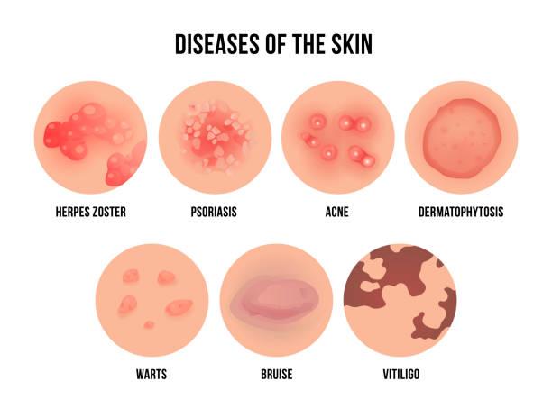 illustrazioni stock, clip art, cartoni animati e icone di tendenza di skin disease, types of dermatology problems with names - irritazione