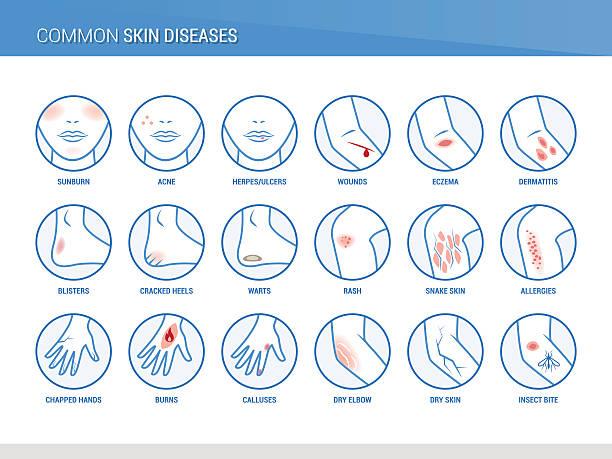 ilustraciones, imágenes clip art, dibujos animados e iconos de stock de enfermedades de la piel - dermatología