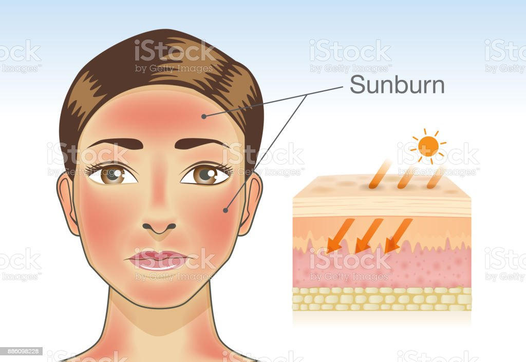 Skin layer of woman which appear redness from sunburn. vector art illustration