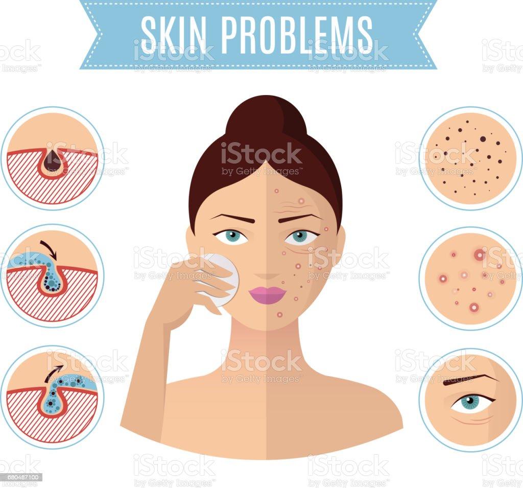 Haut, Problemlösung, Akne-Behandlung und Reinigung der Poren für perfekte Womans Gesicht Vektor-icons – Vektorgrafik