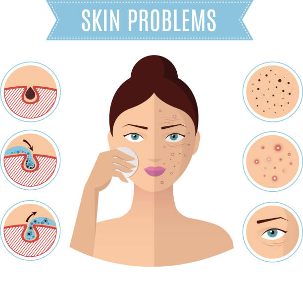 ilustraciones, imágenes clip art, dibujos animados e iconos de stock de piel problemas, tratamiento del acné y limpieza de poros de mujer perfecta cara vector icons - dermatología