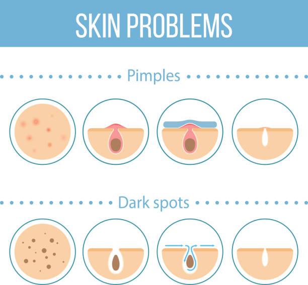 ilustrações, clipart, desenhos animados e ícones de skin problems icons - limpando rosto