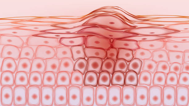 Skin tissue cancerous cells, melanoma Skin tissue cancerous cells, melanoma biological cell stock illustrations
