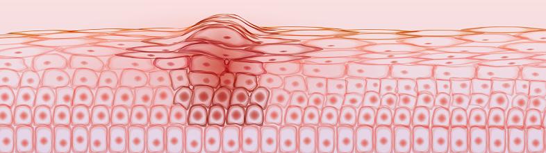 Skin tissue cancerous cells, melanoma
