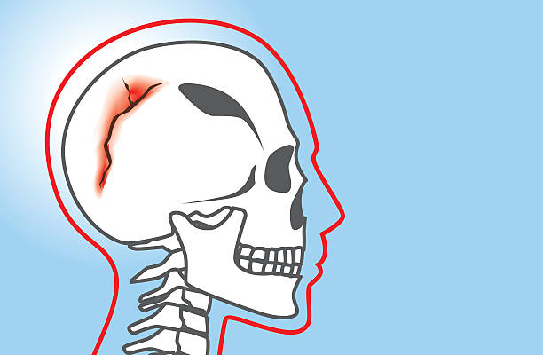 Skull Fracture Human have any break in the cranial bone which called skull fracture. This is medical illustration. human jaw bone stock illustrations