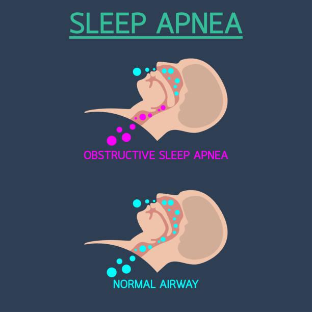 Sleep Apnea vector icon illustration vector art illustration