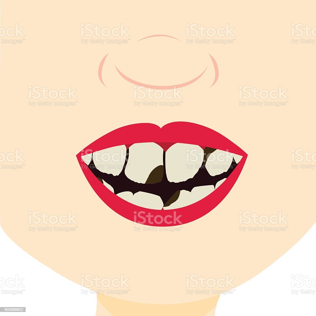 Smile and teeth decayed vector art illustration