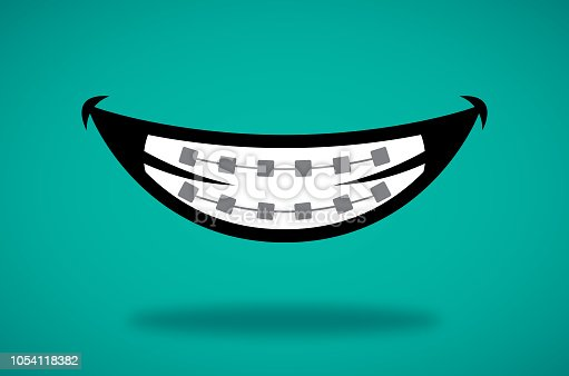 Vector illustration of a smile with braces against a teal background.