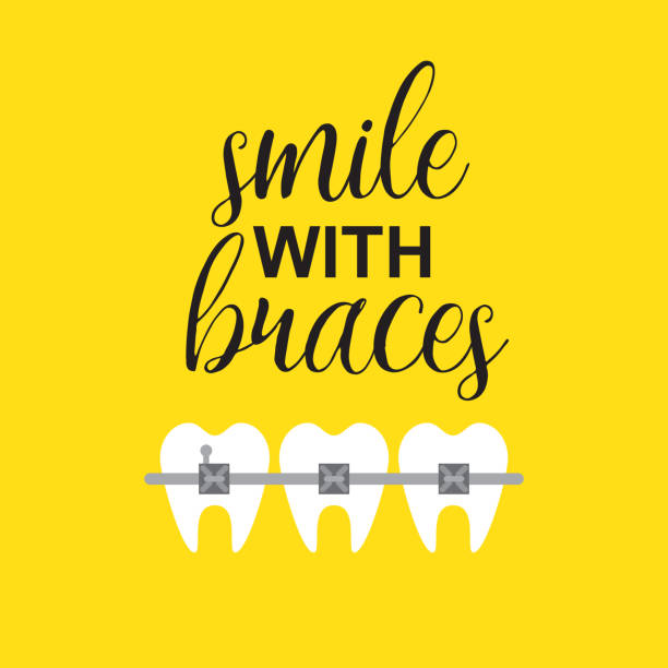 smile with braces on teeth vector illustration - orthodontist stock illustrations, clip art, cartoons, & icons