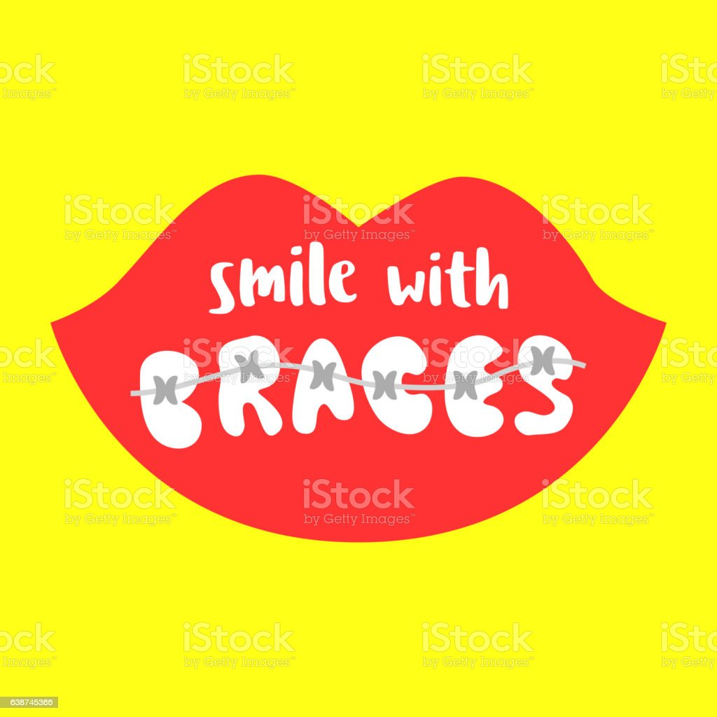 Smile With Braces On Teeth Vector Illustration Stock