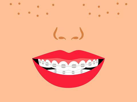 Smile with dental braces. Cartoon medical correct bite of teeth
