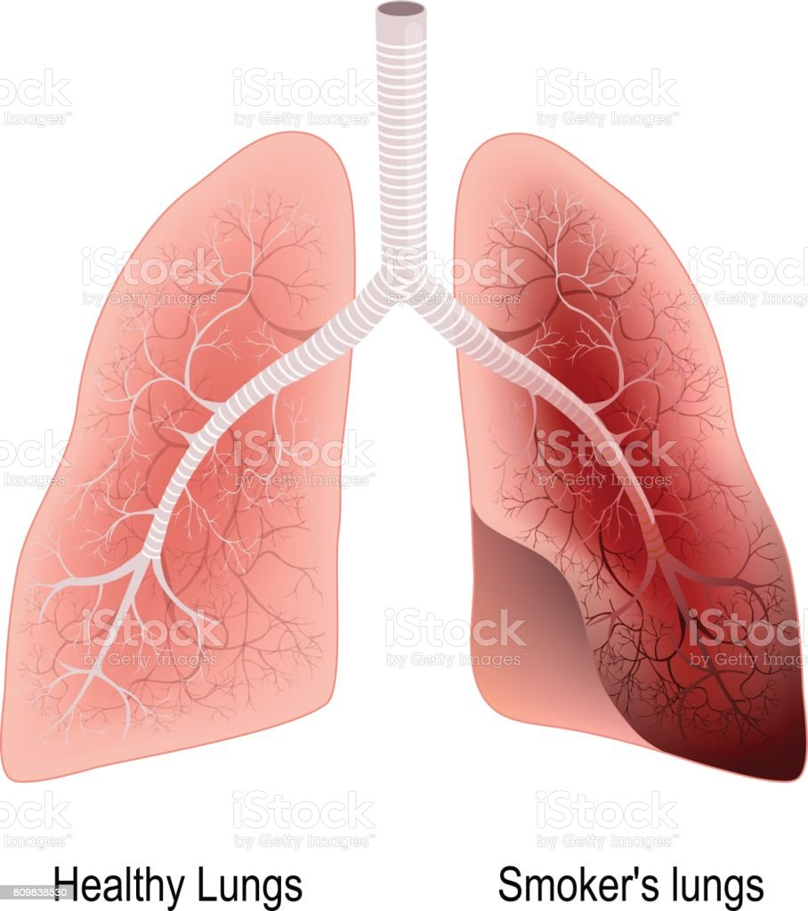 Smoker's lung and healthy lung vector art illustration