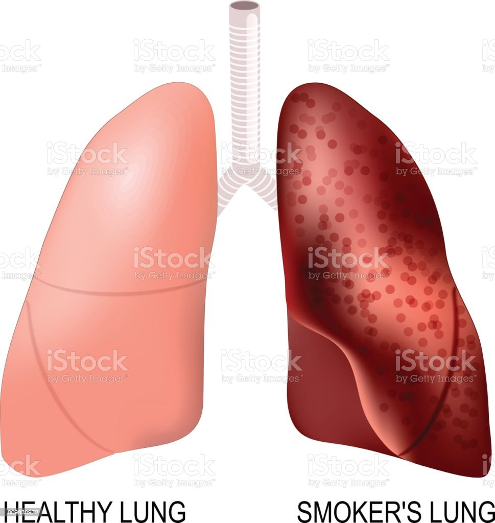 smokers lung and healthy lung stock vector art more images of