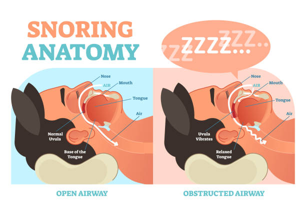 Snoring anatomy medical vector diagram with air passage. Snoring anatomy medical vector diagram with nose, mouth, tongue and air passage. respiratory tract stock illustrations