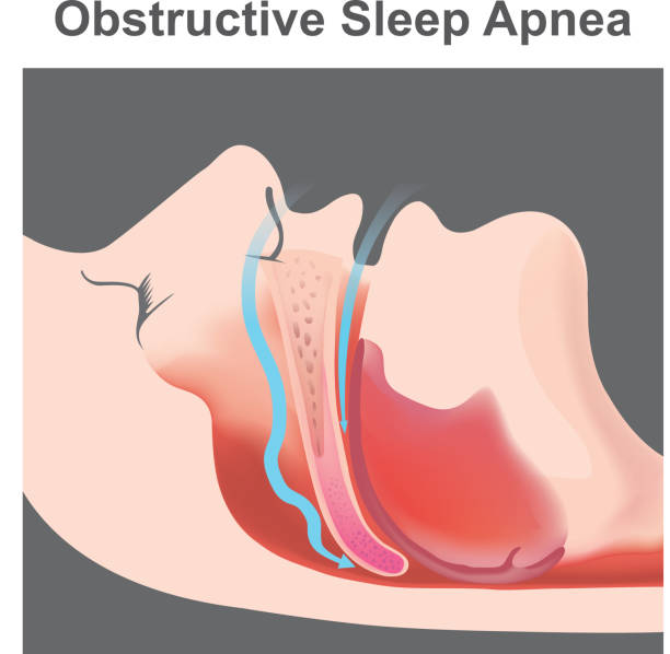 Snoring is the vibration of respiratory structures and the resulting sound due to obstructed air movement during breathing while sleeping. vector art illustration