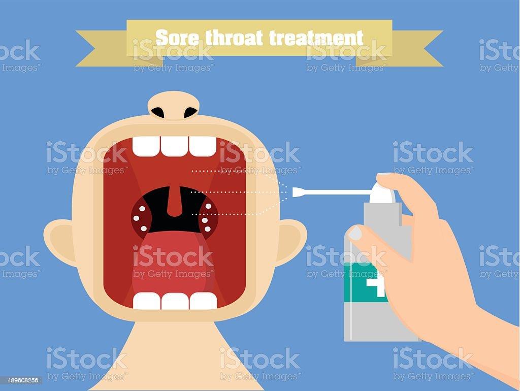 Sore throat treatment with aerosol. Quinsy treatment conceptual illustration vector art illustration