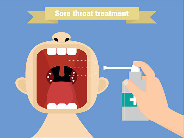 Sore throat treatment with aerosol. Quinsy treatment conceptual illustration Inhalation of aerosol to the opened mouth sore throat stock illustrations