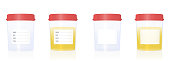 istock Specimen cups with blank labels and red screw caps - empty and filled with urine. Isolated vector illustration on white background. 1256735209