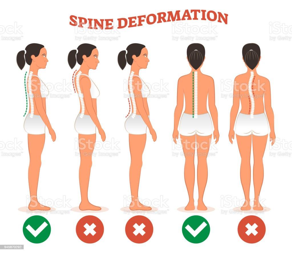 tipos de deformaci�n de la espina dorsal y columna vertebral sana  comparaci�n diagrama cartel  ilustraci�n
