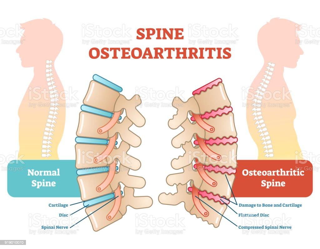 Spine osteoarthritis anatomical vector illustration diagram vector art illustration