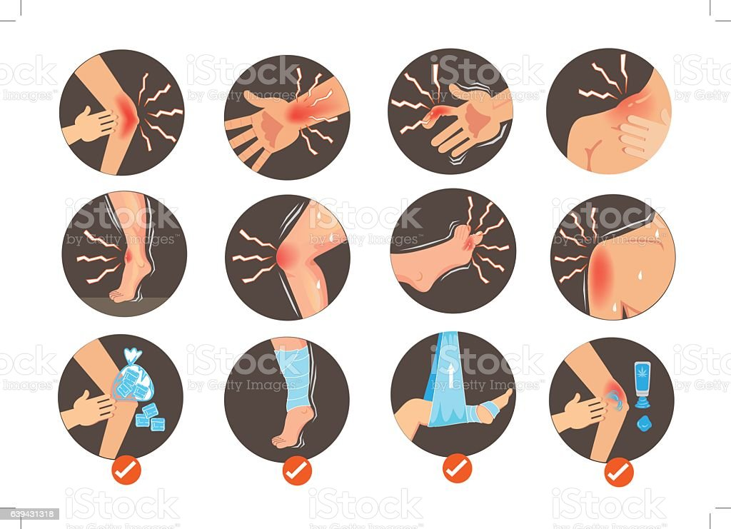 Sprains vector art illustration