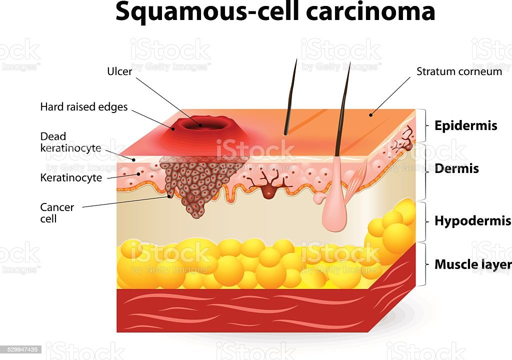 Squamous cell carcinoma vector art illustration