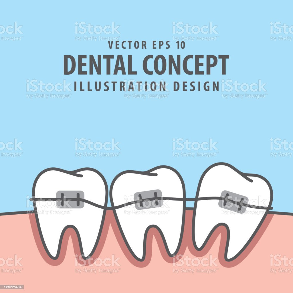 Square banner braces teeth  illustration vector on blue background. Dental concept. vector art illustration