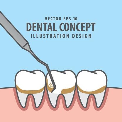 Square banner Scaling teeth illustration vector on blue background. Dental concept.