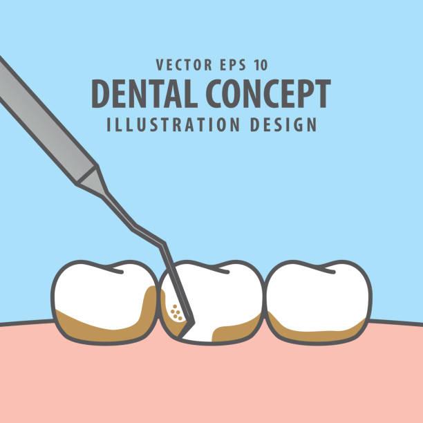 bildbanksillustrationer, clip art samt tecknat material och ikoner med square banner skalning tänder illustration vektor på blå bakgrund. dental koncept. - tandsten