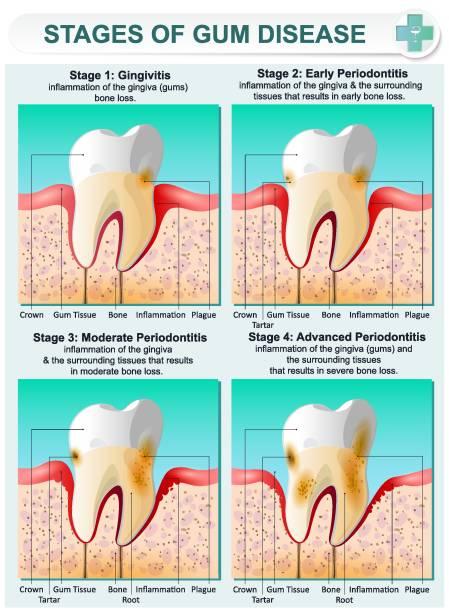 bildbanksillustrationer, clip art samt tecknat material och ikoner med skede av tandköttsproblem - tandsten