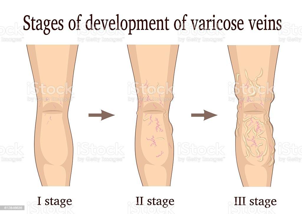 Stages of development of varicose veins vector art illustration